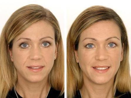 Биоревитализация представляет собой метод введения под кожу препаратов на основе стабилизированной гиалуроновой...