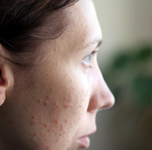 Как поражается кожа при псориазе