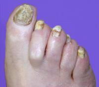 Википедия грибок ногтя
