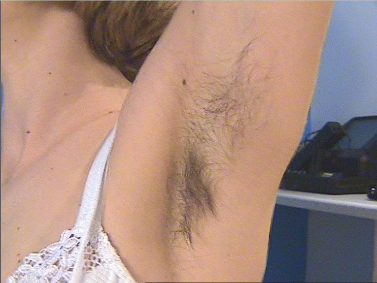 удаление волос над верхней губой лазером