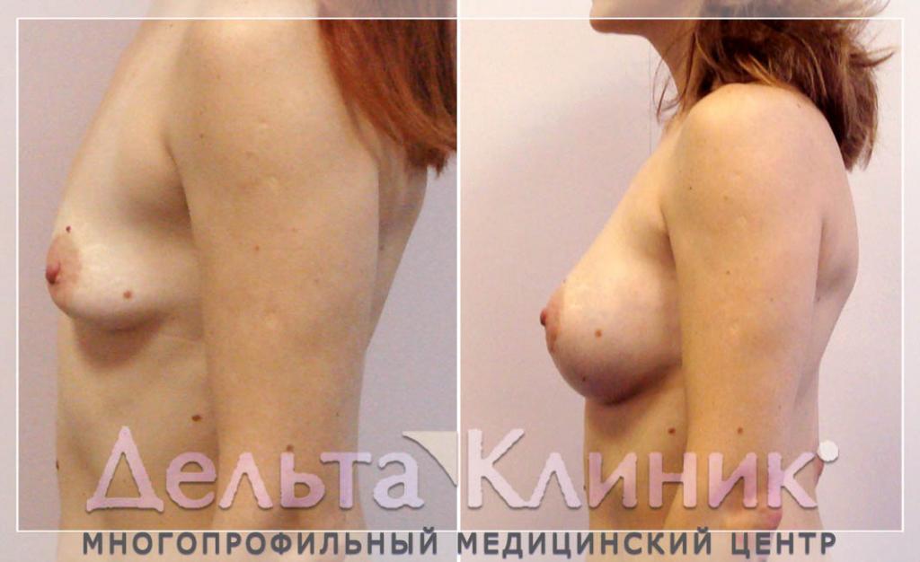 Операция пластика груди выполняется под общей Перед всеми операциями ма