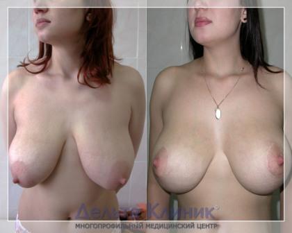 фото женщины с грудью уши крючочки