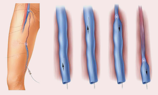 Рис.5 Процедура эндовенозной лазерной коагуляции (аблации) большой подкожной вены при варикозе.