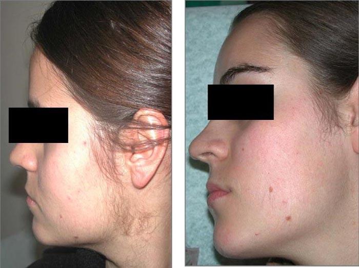 удаление нежелательных волос йод