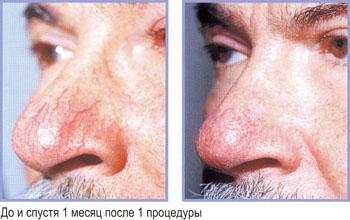 Удаление сосудистых звездочек на лице фотовспышкой