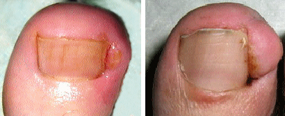 Виды грибка рук и ногтей