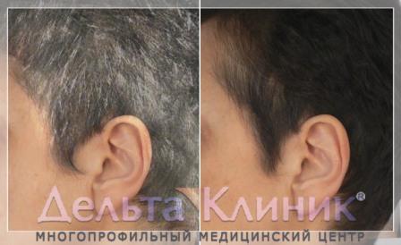 Результат лечения седины