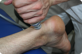 Синовит голеностопного сустава: лечение и профилактика